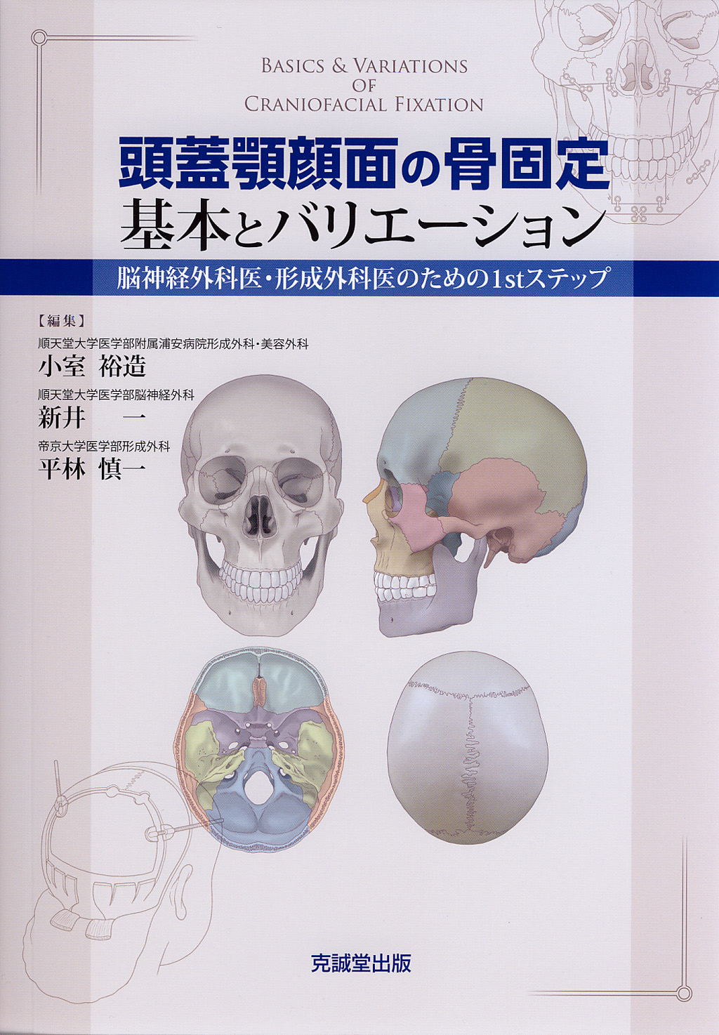 頭蓋顎顔面の骨固定 基本とバリエーション