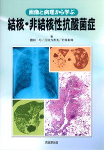 結核・非結核性抗酸菌症
